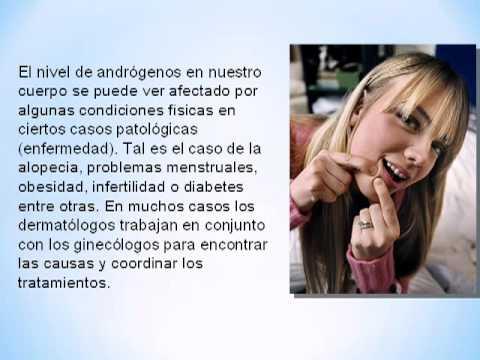 Tratamientos para el Acné Hormonal [Como Eliminar el Acne Rapidamente]