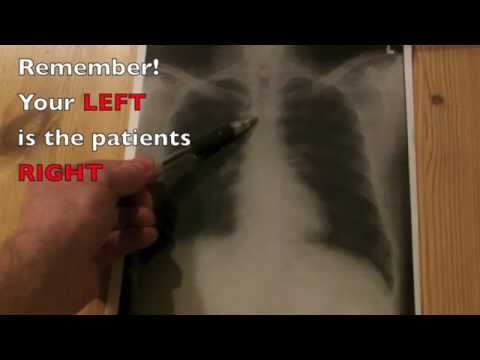 How to interpret a Chest Xray in under 4 minutes