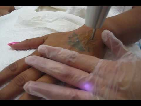 Tags: laser tattoo removal tattoo removal cost tattoo removal pricing tattoo