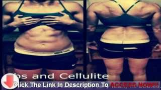 How to Lose Cellulite - Important Facts and Treatments