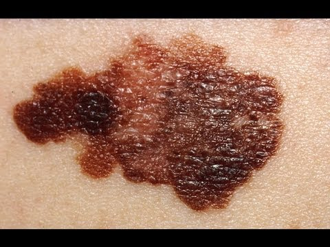 What Does Skin Cancer Feel Like [DermTV.com Epi #499]