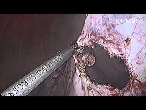 Laparoscopic Salpingo Oophorectomy For Huge Ovarian Cyst By Dr. R.k. Mishra