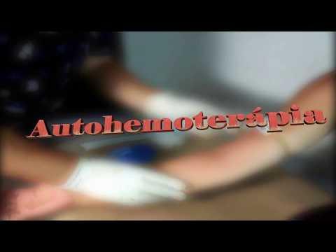 Autohemoterapia - Explicación y Aplicación