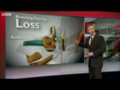 Regeneration of hearing using Human Stem Cells - September 2012 -