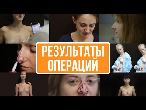 Результаты пластических операций ★ Plastic surgery results