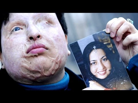 Iran Acid Attacks Against Women Spark Protests