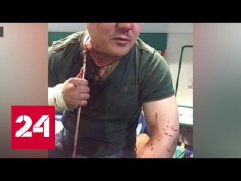 В Москве арестовали мужчину, который чуть не убил друга из арбалета