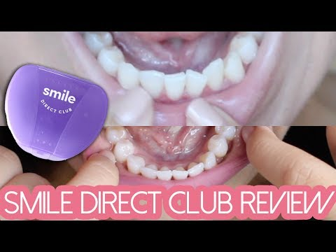 SMILE DIRECT CLUB REVIEW: Final Thoughts