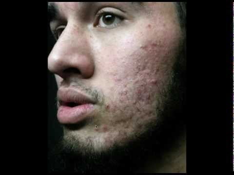 Acne is Always Treatable   (there are no exceptions to this rule)
