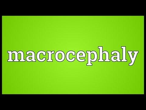 Header of macrocephaly