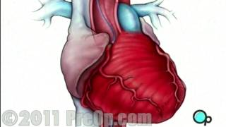Heart - Cardiac Catheterization Angiography PreOp® Patient Education HD