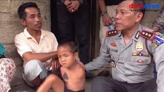 Download Lagu Kapolres Pakpak Bharat Bapak Asuh  Penyandang Disabilitas Bocah Tanpa Tangan Gratis STAFABAND