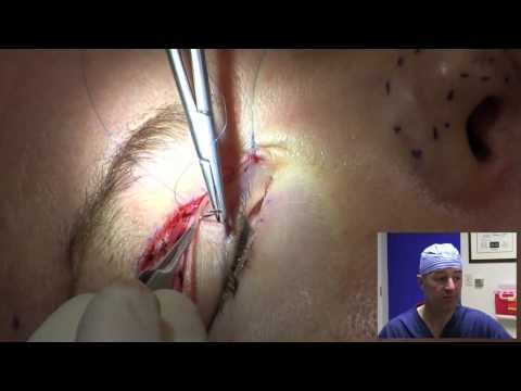 Eyelid Surgery in 10 Minutes Music Videos