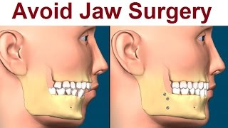 Why Orthotropics Suggests Not To Have Jaw Surgery By Dr Mike Mew