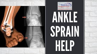 Hawkes Physiotherapy Lateral ankle sprain video