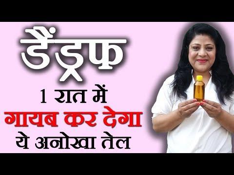 Dandruff Treatment - How To Do Natural Dandruff Treatment At Home (Hindi)