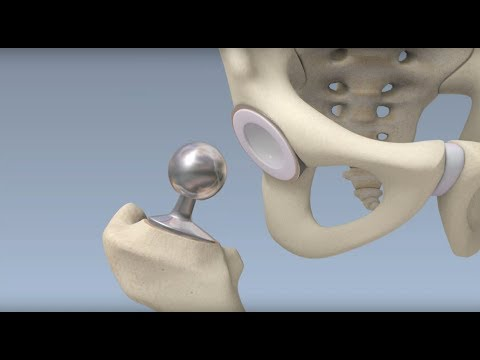 Hip Surgery Overview - Mayo Clinic