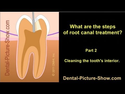 Root canal treatment steps. - Part 2