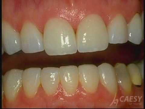 Cosmetic Dentistry Procedures - Bonding