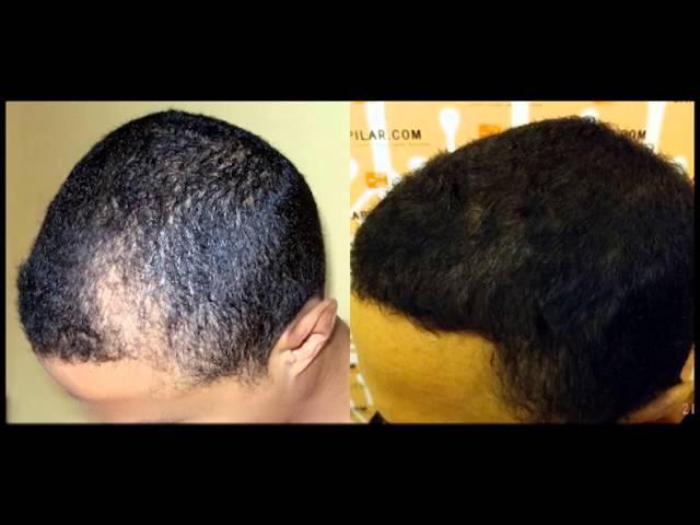 Reparación de alopecia de patrón atípico por método FUE