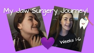 My Jaw Surgery Journey! (Weeks 1-6)