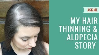 Hair Thinning, Balding & Bald Spots: My Alopecia Story