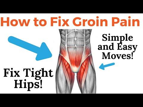 Download Lagu Groin Pain Radiating Down Inside Leg - How To Fix Groin/Hip Pain? Tight Hip Flexor!.mp3