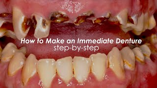 How to Make an Immediate Denture, Step-By-Step