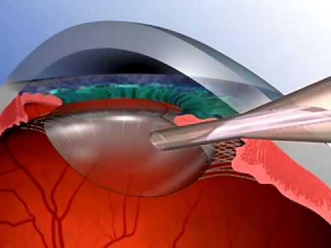 LondonOC - Cataract Surgery