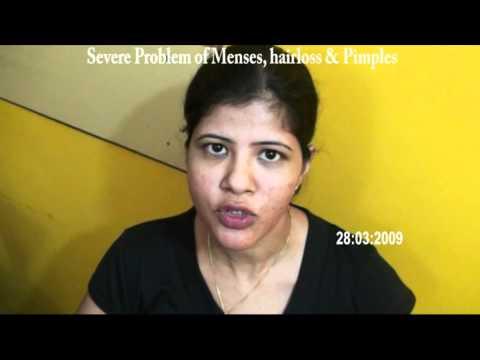 Acupuncture MONICA MASCARHENHAS MENSES HAIRLOSS PIMPLES 2 Eng