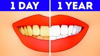What If You Stopped Brushing Teeth for a Year?