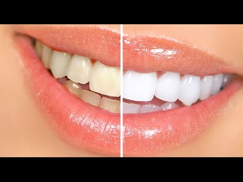 Cómo blanquear los dientes | How to whiten teeth at home