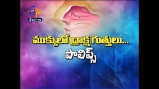 Nasal Polyps | Sukhibhava | 16th November 2018 | ETV Telangana