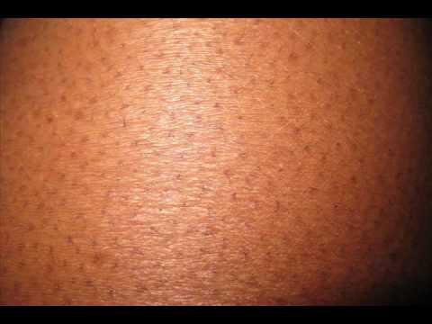 Keratosis Pilaris African American