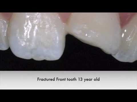 White Filling Restoration Front Tooth Youtube