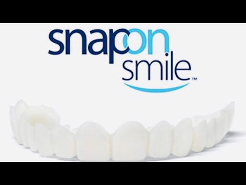 Snap-on-Smile for $50.00!!!!!!!!!