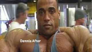 Steroids Before And After Pics