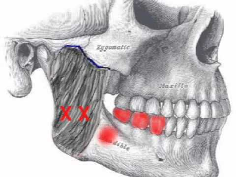 how to make masseter muscle bigger