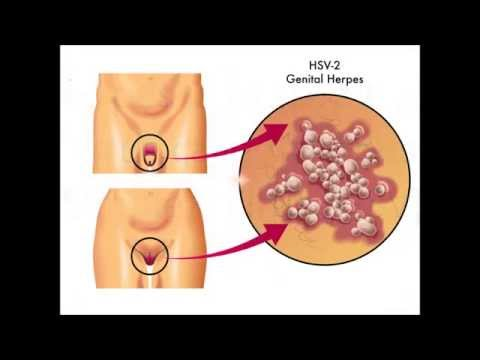 Herpes typ 1 i underlivet smitta