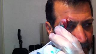 Cupping Lesson 5 الحجامه: Part 1/2 Cupping For Eyes & Sight Related Problems