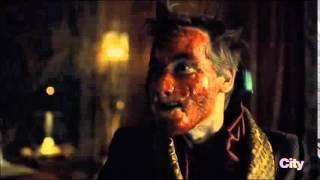 Hannibal 3x07 - Mason death