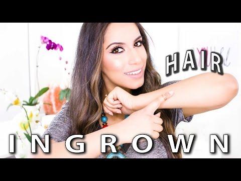 Ingrown Hair (DIY) How to Get Rid of Ingrown Hairs Step-by-Step (Natural Skin Care)   Himani Wright