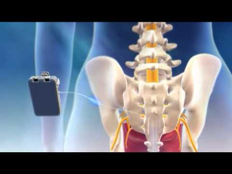 Back Nerve Stimulator Sacral Nerve Stimulation