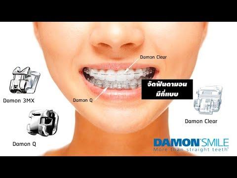 จัดฟันดามอน จัดฟันดามอนคิว Damon Braces