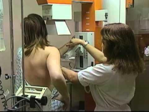 Životni stil utiče na rak dojke?