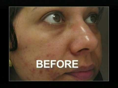 Microdermabrasion for uneven skin tone and acne prone skin