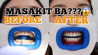 FIRST TEETH WHITENING EXPERIENCE (SHOCKING RESULTS) | Angel Dei