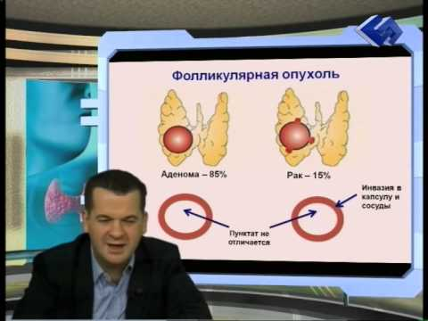 0 - Що робити якщо душить щитовидка