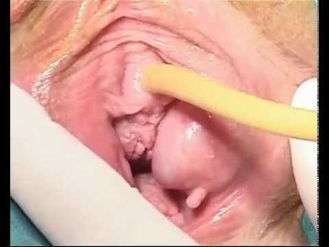 Tvt (tension Free Vaginal Tape) video