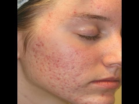 kissing tips does cause acne